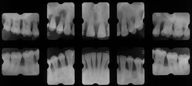 dental1